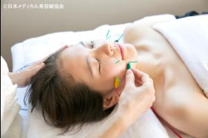 立体造顔美容鍼写真_会員提供用